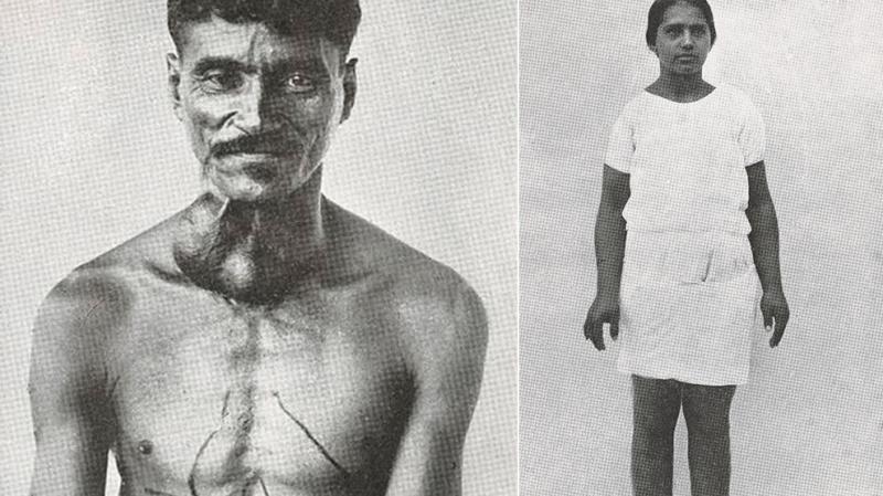 Objawy choroby Chagasa: opuchnięte kończyny, guzki (Wellcome Images (CC BY-SA 4.0))